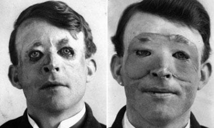 Timeline of the History of Plastic Surgery