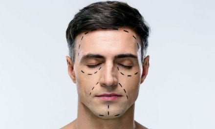 Top 5 Cosmetic Surgeries for Men