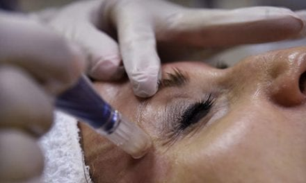 What is Microneedling and Why is it Gaining Popularity?