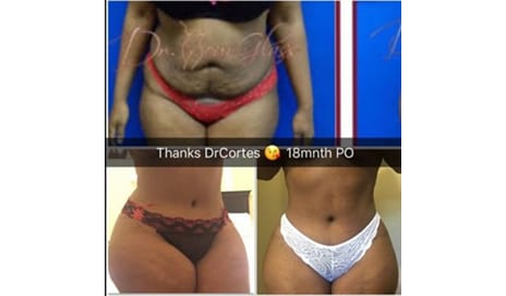 Hourglass Tummy Tuck: The Next Generation in Body Contouring