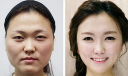 Chinese Women Now Spend More Money on Plastic Surgery Than Any Other Asians