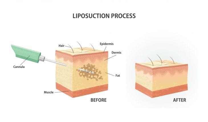 10 Liposuction Myths Debunked