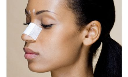 Temporary Nose Jobs Are Cheap, Easy, and Potentially Dangerous
