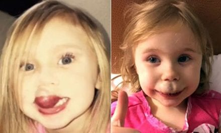 Life-Changing Surgery Offers Hope for Toddler with Debilitating Facial Birthmark