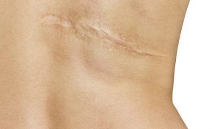 An End to Scars? Breakthrough Could Heal Wounds Without Leaving a Trace