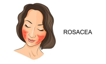 Updated Guidelines for Diagnosis, Treatment of Rosacea