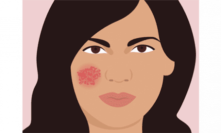 Eczema Treatment: What You Can Do To Stop The Incessant Itch