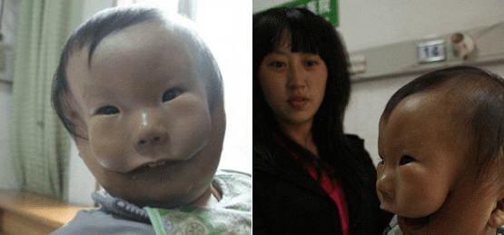 Chinese Boy Born With 'Two Faces' Undergoes Surgical Procedures To Grow Facial Bones Normally: Transverse Facial Cleft Repair
