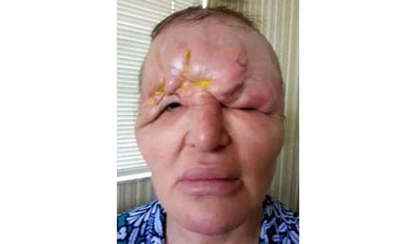 """Florida Woman Left Suicidal, Feeling """"Like a Monster"""" After Suffering Partial Blindness, Collapsed Forehead from Botched Botox"""