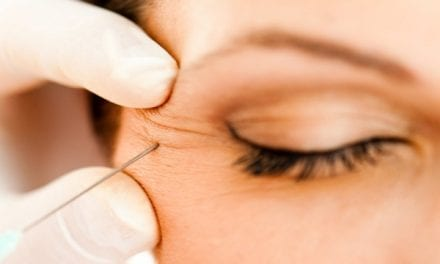 Considering Botox? Here's How (and When) to Start Doing It Right