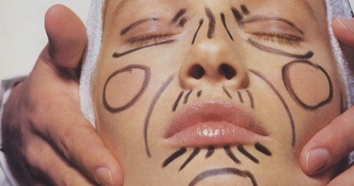 Are Microtreatments the New Facelifts? One Writer's Yearlong Journey to a Fresher Look