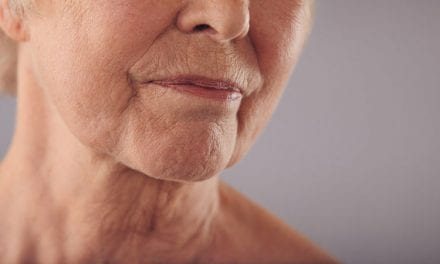 Three Things That Age the Skin
