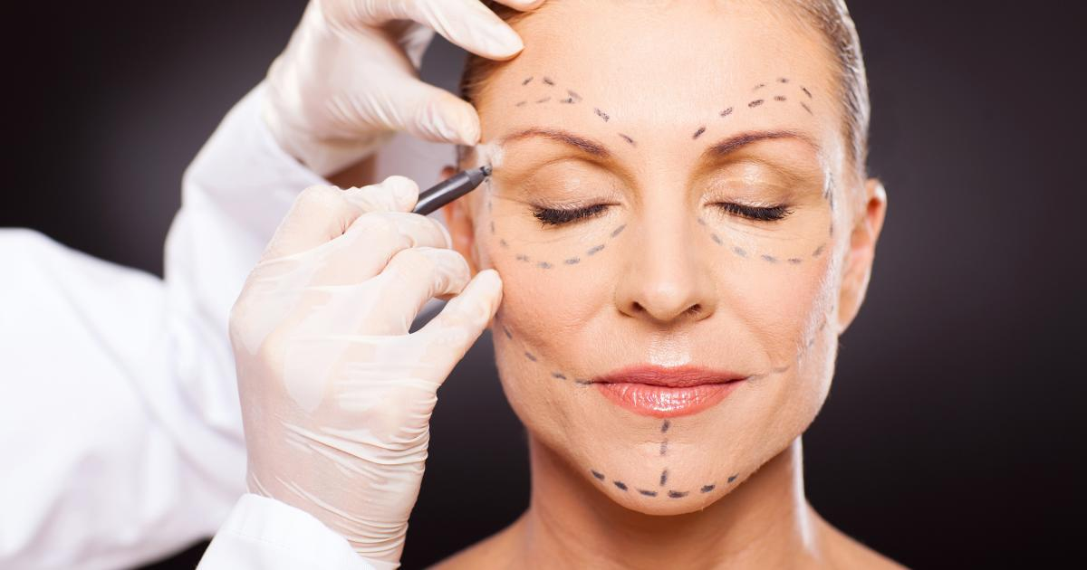 Cosmetic Surgery and the Workplace Beauty Premium