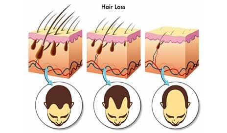 SmartGraft Minimally Invasive Hair Restoration Now Available in San Antonio