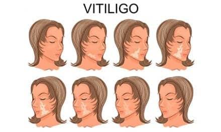 Vitiligo Linked to Moles, Tanning Ability, Blistering Sunburn