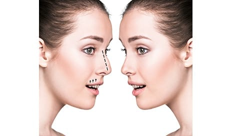 Experts Develop Evidence-Based Clinical Practice Guideline on Rhinoplasty