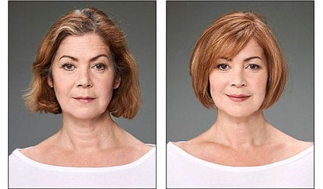 With Many Women Turning Their Backs on Cosmetic Surgery, Hairdressers Have Come Up with Some Ingenious Solutions – So Can You See a Difference?