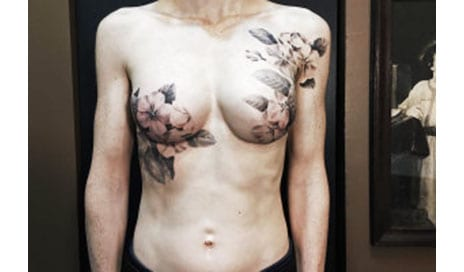 How Tattoos Are Transforming Mastectomy Scars