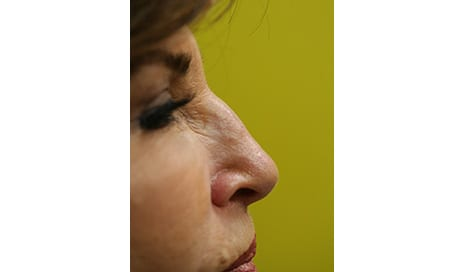 Refining the Nose with a Needle