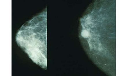 Surgery to Remove Unaffected Breast in Early Breast Cancer Increases