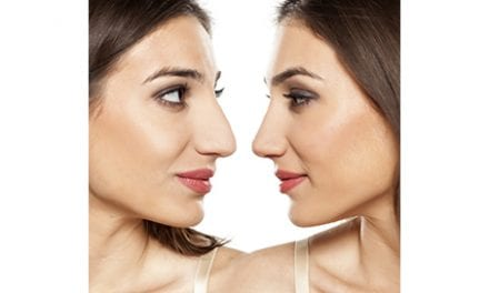 Does Rhinoplasty Change Perceptions of Attractiveness, Success, Health?