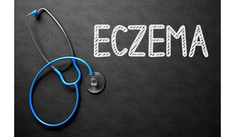 Breast-Feeding in Infancy Linked to Decreased Risk of Eczema in Teens