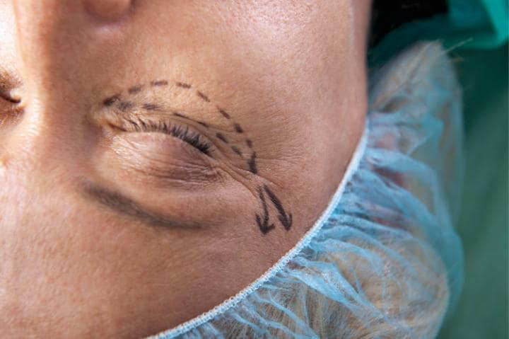 How a Face-Lift Can Aid Success (and Even Help You Escape a Speeding Ticket)
