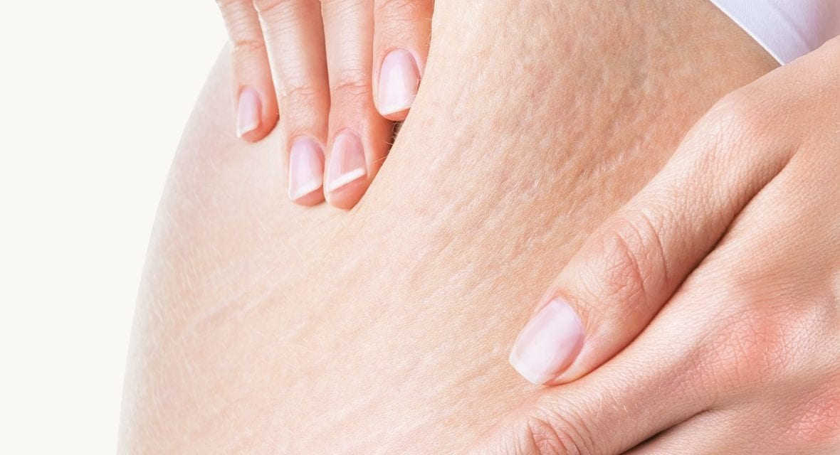 How to Minimize the Appearance of Stretch Marks, According to Dermatologists