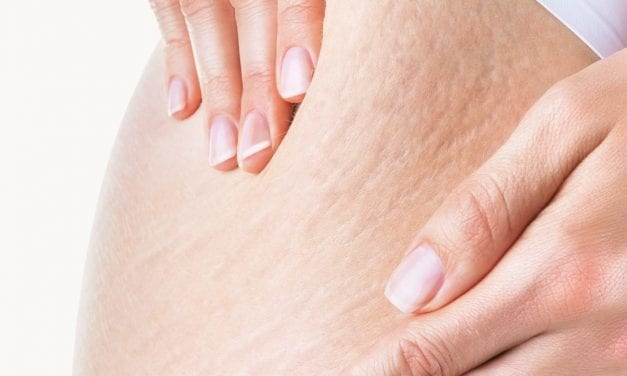 What to Look for in a Stretch Mark Cream, According to Dermatologists