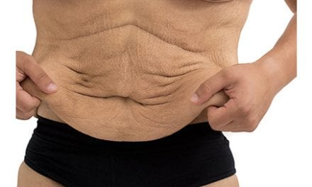 How to Deal With Extra Skin After Major Weight Loss