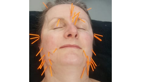 Could Sticking 35 Needles in Your Face Really Have So Many Benefits? Let's See…