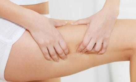 9 Effective Ways to Get Rid of Cellulite