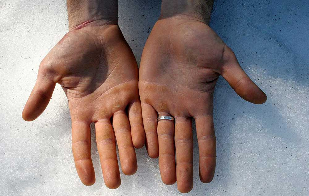 Sweaty Palms? You Can Fix It, But You Won't Believe How
