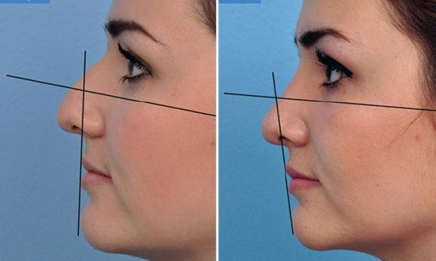 Want to Plump Up Your Lips But Terrified of a 'Trout Pout'? A Nose Job Might Be the Answer, Say Plastic Surgeons