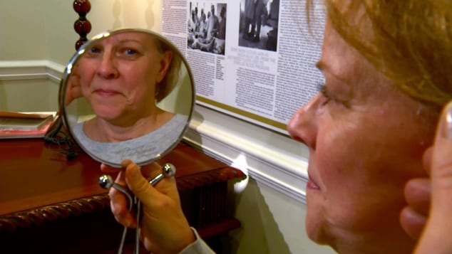 Woman's Confidence Increases After Weekend Facelift