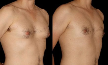 Pressure to Look Good Driving Males to Seek Treatment for 'Man Boobs'