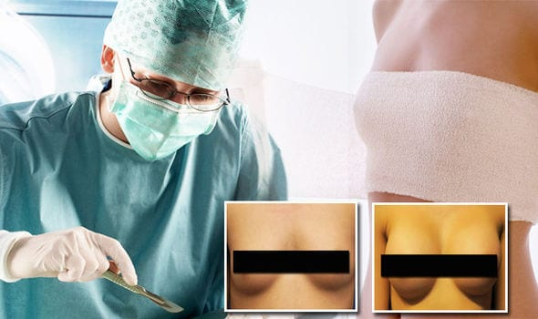 You Won't Believe the Results of This New Boob Job Procedure