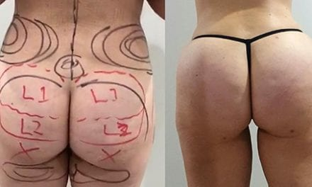 Brazilian Butt Lift In Vogue as Australian Women Try to Emulate Celebrities