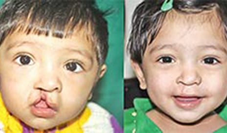 Smile Train India Brings Succour to Many Through Reconstructive Surgery