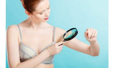 How to Detect Abnormal Moles
