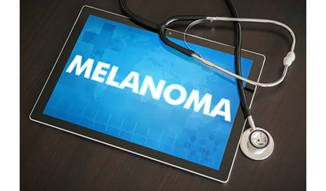 Modern Estrogen 'Microdoses' in Contraceptives Did Not Increase Risk of Melanoma