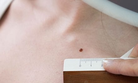 How Often to Get Skin Cancer Screenings at Dermatologist