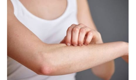 How To Avoid Itchy Skin this Summer