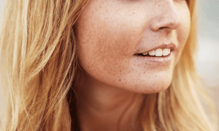 Two-Minute Beauty Read: Does Stress Really Affect Your Skin?