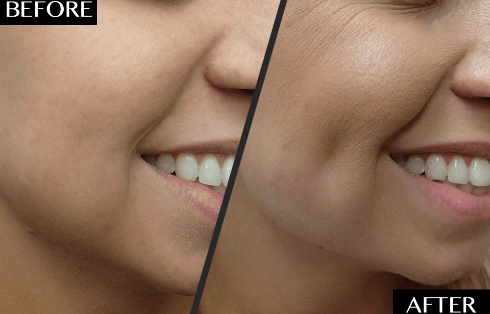 A 30-Minute Procedure You've Never Heard of Is Seriously Trending