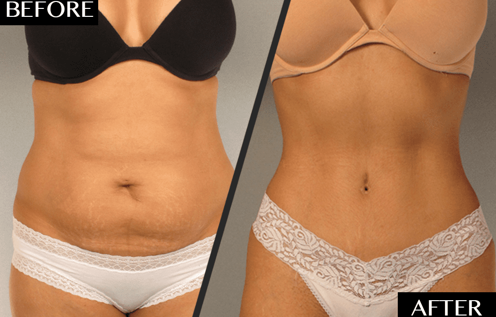 A Plastic Surgeon's Secret to Dramatic Tummy Tuck Transformations