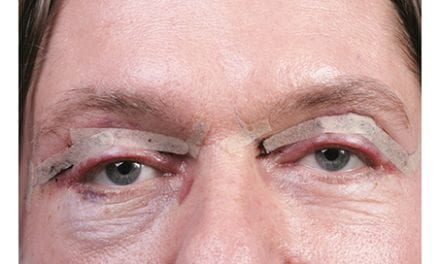 Tips to Avoid Blepharoplasty Complications