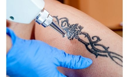 Use of a Patch with a Laser During Tattoo Removal Can Have Multiple Benefits, Per Study