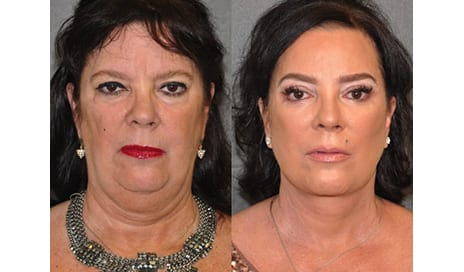 Many Faces of the Facelift