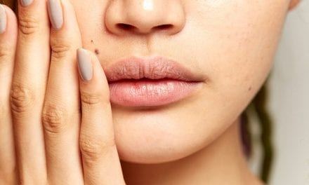 6 Skin Care Techniques Derms Say to Never Try at Home
